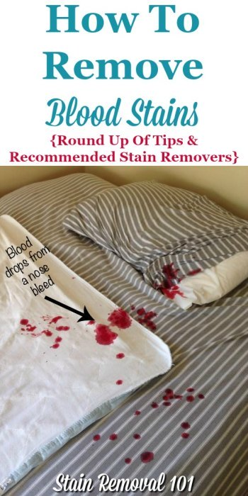 Here is a round up of tips and recommendations for stain removers when trying to figure out how to remove blood stains from clothing, carpet, upholstery, and other areas of your home {on Stain Removal 101} #RemoveBloodStains #BloodStainRemoval #StainRemovalTips