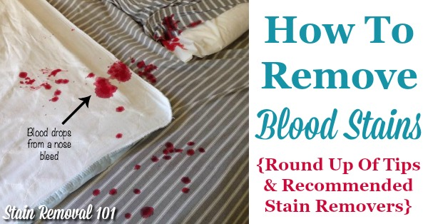 How To Remove Blood Stains: Round Up Of Tips And Stain