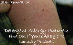 detergent allergy pictures