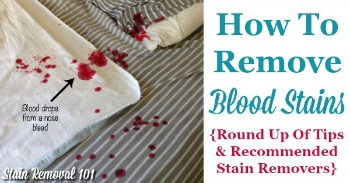 Tips for how to remove blood stains