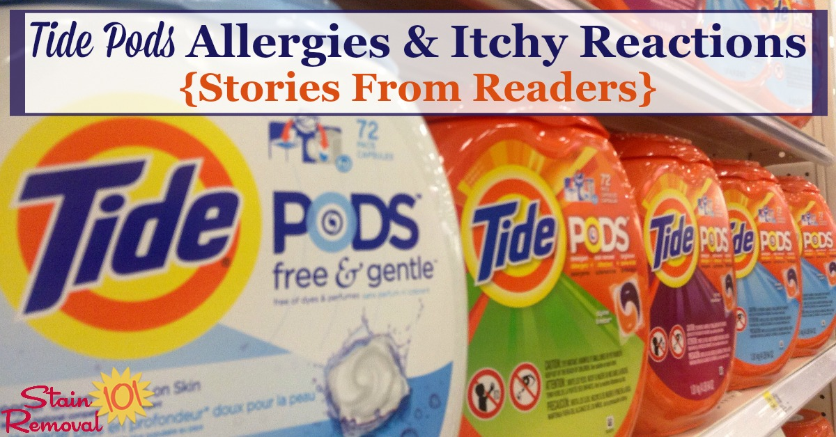 Here are stories from readers about Tide Pods allergies and itchy reactions they've experienced, plus recommendations about what to do about it {on Stain Removal 101} #TidePods #LaundryAllergies #AllergicReactions